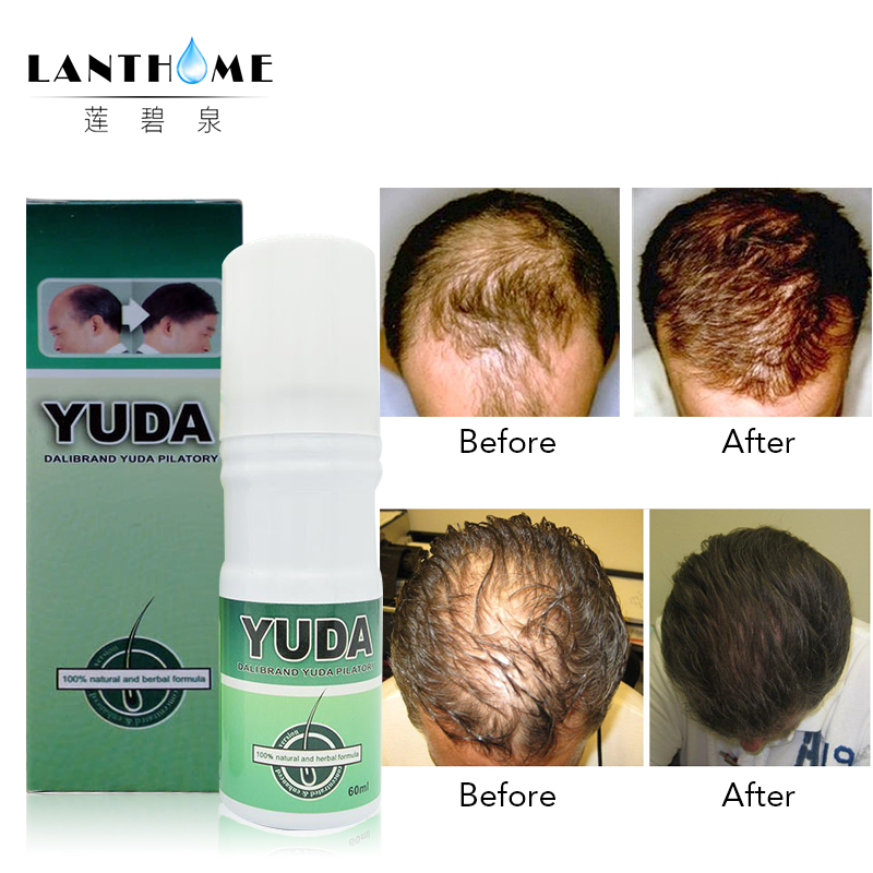 Lanthome 3bottles bald hair pilatory extra strength Sunburst alopecia hair growth treatment stop hair loss products
