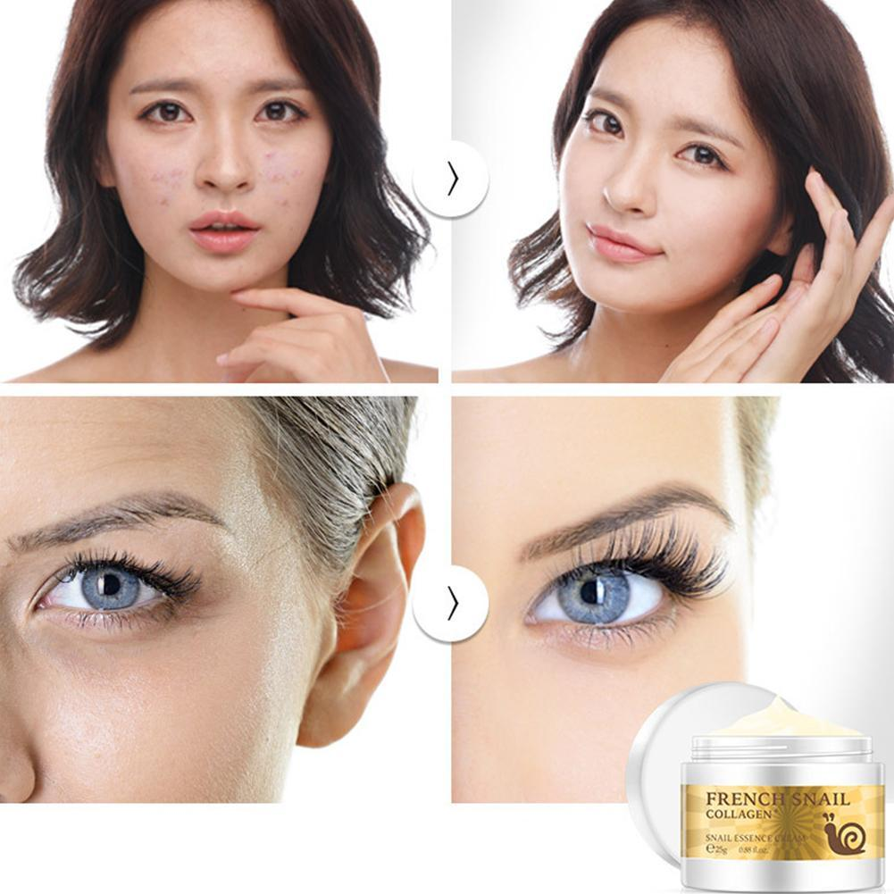 Image 4 - Health Snail Face Cream Hyaluronic Acid Moisturizer anti Wrinkle collagen day cream skin care Anti Aging Nourishing Serum