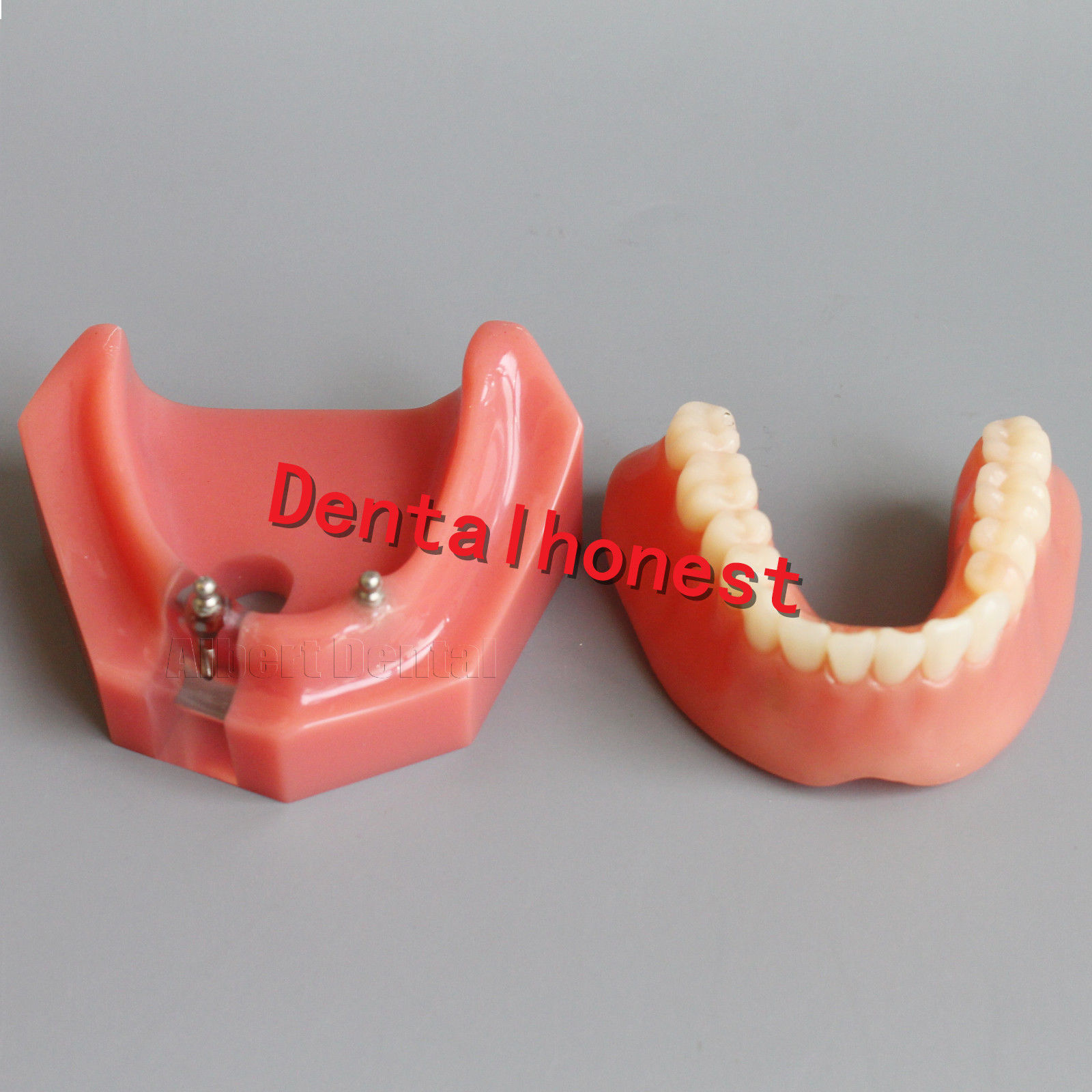 Dental Inferior Implant Overdenture 6007 Teeth Model 2 Implants Tooth Model soarday dental restoration model with 4 implants overdenture inferior teaching study teeth model