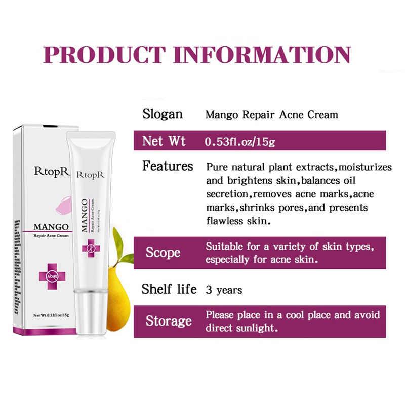 ซ่อม Acne Cream 15g สิวจุดด่างดำแผลเป็นจากสิวหัวดำรูขุมขน Whitening Moisturizing Face Skin Care TSLM2