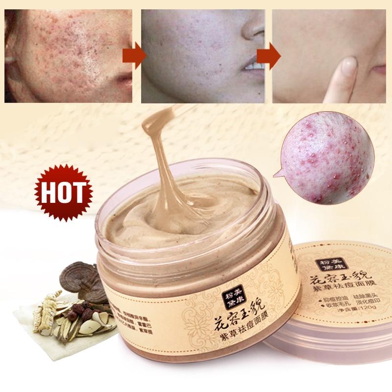 מייקינג מסכת פנים טיפוח העור הלבנת אקנה טיפול הסר אקנה Blackhead מסכות לפנים לישון ניקוי לחות סוג 120g