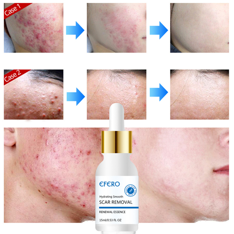 EFERO Face Cream Whitening Cream Acne Removal Essence Serum for Face Skin Care Pimple Spot Acne Treatment Cream for Face Islamabad