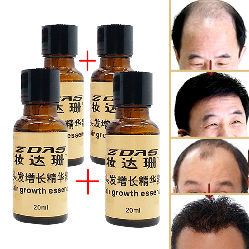 New Arrival Andrea Hair Growth Products Ginger oil Hair ...