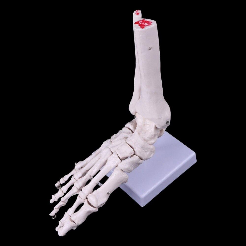 В натуральную величину стопы голеностопного сустава анатомическая медицинская модель скелета Дисплей инструмент исследования