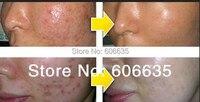 2014 gratis schip Acne crème whitening crème blain chinese kruidengeneeskunde producten acne verwijderen litteken