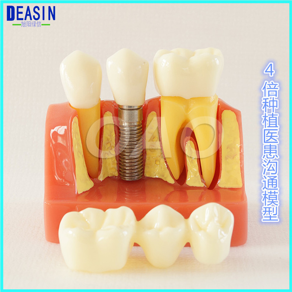 DENTOFORM MACRO IMPLANT CROWN BRIDGE DEMOSTRATATION TEETH TOOH TYPODONT TEETH MODEL 2016 dental orthodontics typodont teeth model half metal half ceramic brace typodont with arch wire