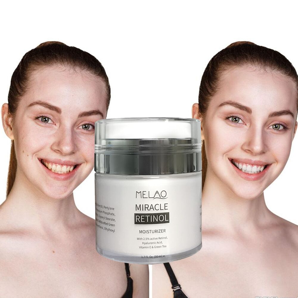 retinol cream 1