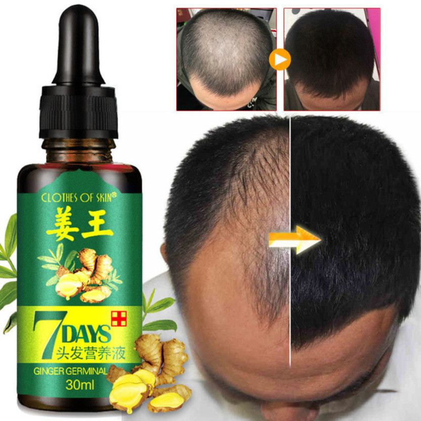 7 Day Ginger Germinal Serum Essence Oil Natural Hair Loss Treatement Effective Fast Growth Hair Care 30ML|Hair Loss Products|   - AliExpress