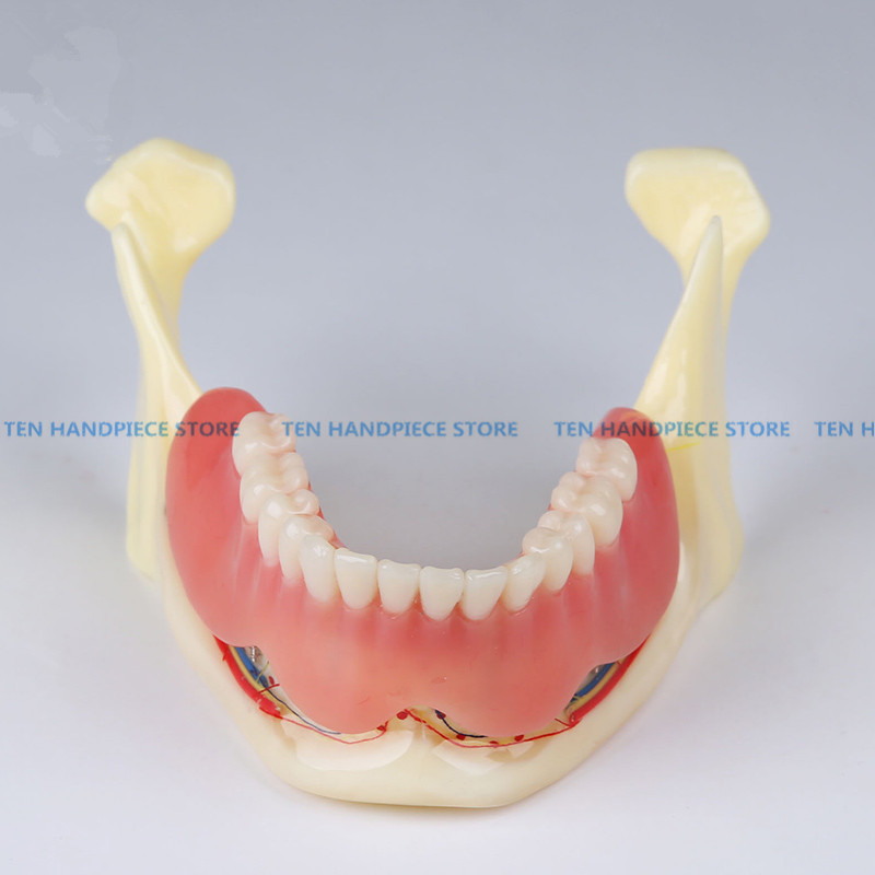 2018 good quality Resin mandibular denture Coverage model Mandible belt nerve model Display dentures Removable teeth model coverage metrics for model checking