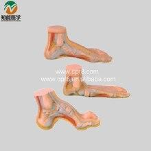 BIX-A1069 Normal Foot Flat Foot Bow Foot Model WBW232