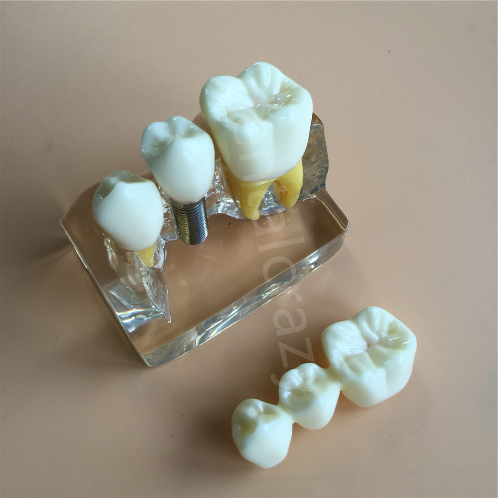 Clear Dental Demonstration Study Teeth Model For Implant Analysis Crown Bridge Model