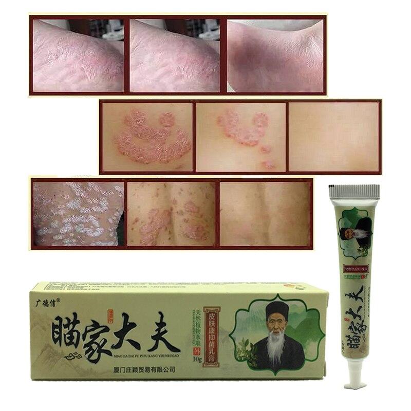 Psoriasis Cream Dermatitis Eczematoid Eczema Ointment Skin Treatment Body Massage Patches Wholesale