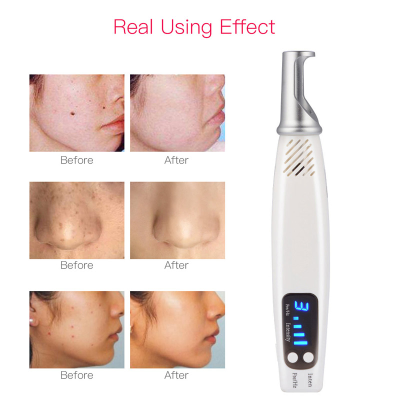 Handheld Laser Heat Picosecond Pen Scar Mole Freckle Dark Spot Removal Acne Treatment Eyebrow Tattoo Removal Machine Beauty Care laser module industrial laser head red laser spot heat dissipation can work for a long time