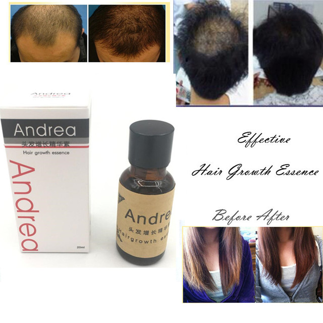 Andrea Hair Growth Ginger Oil Natural Plant Essence Faster Grow Hair Tonic Toppies Shampoo No Hair Loss Hair Care Beauty Tools 1