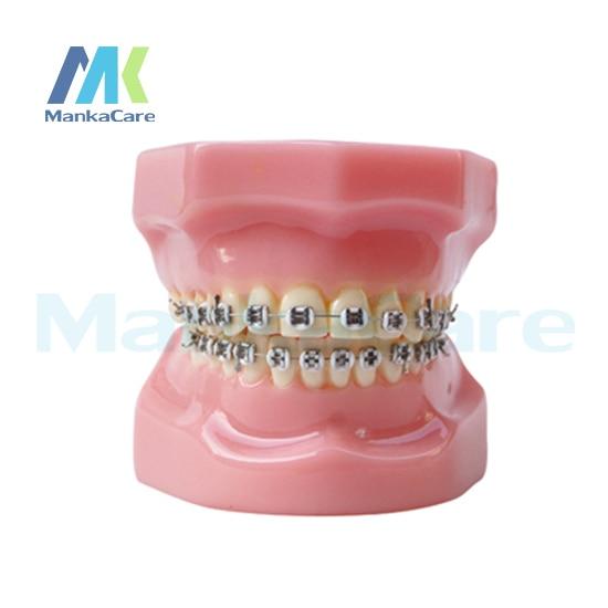 Manka Care -  28 pcs Tooth, all metal bracket Oral Model Teeth Tooth ModelManka Care -  28 pcs Tooth, all metal bracket Oral Model Teeth Tooth Model