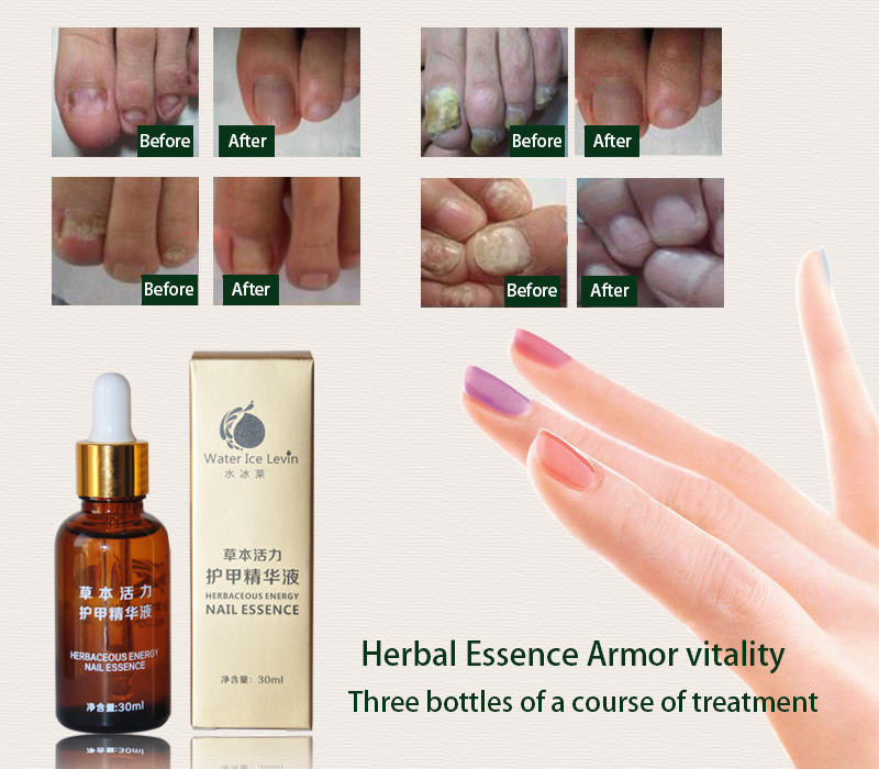 Hot Product Chinese Medicine Fungal Nail Treatment Essence Nail And Foot Whitening Toe Nail Fungus Removal Feet Care Nail Gel 4