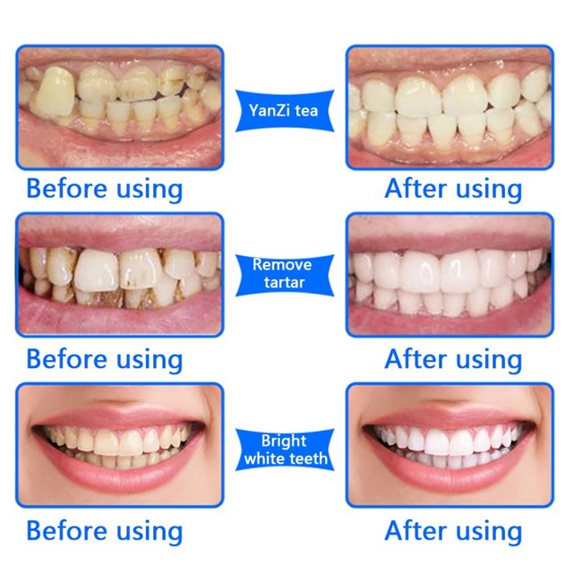 Teeth Brighten Oral Hygiene Cleaning Tools Stains Remover Gentle Natural Plant Tooth Whitening Powder Oral Hygiene