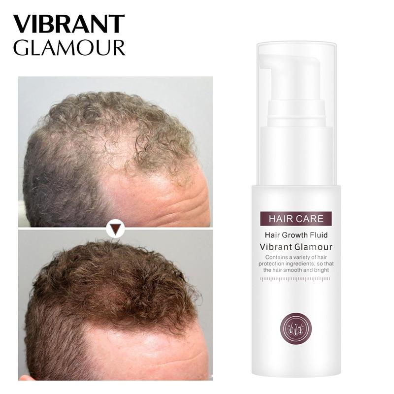 Ginseng Hair Growth Essence Liquid Hair Loss Treatment Liquid Beauty Dense Growt