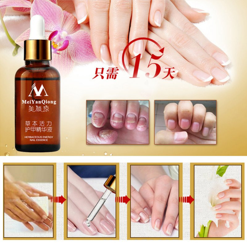 Fungal Nail Treatment Feet Care Essence Nail and Foot Whitening Toe Nail Fungus Removal Nail Gel 4