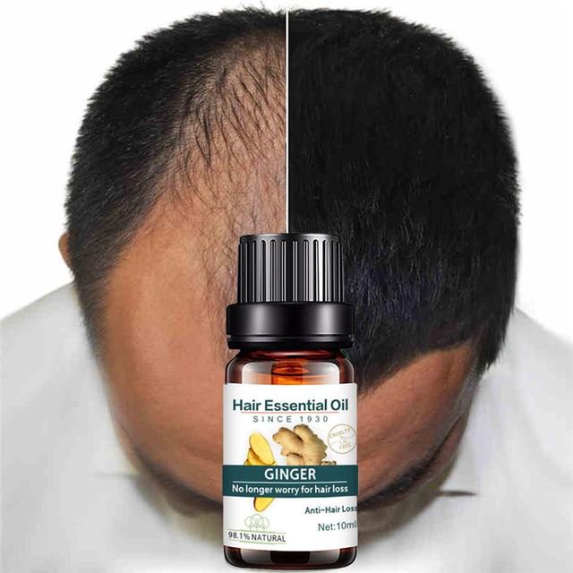 Esencia de crecimiento de pelo de jengibre Natural líquido crecimiento rápido de cabello tratamiento de pérdida de cabello Natural crecimiento rápido esencia líquido 2019