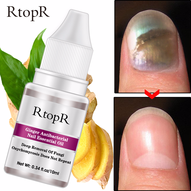 Nail Repair Essence Serum Fungal Nail Treatment Removal Onychomycosis Toe Nail Nourishing Brightening Hand and Foot Care TSLM1 1