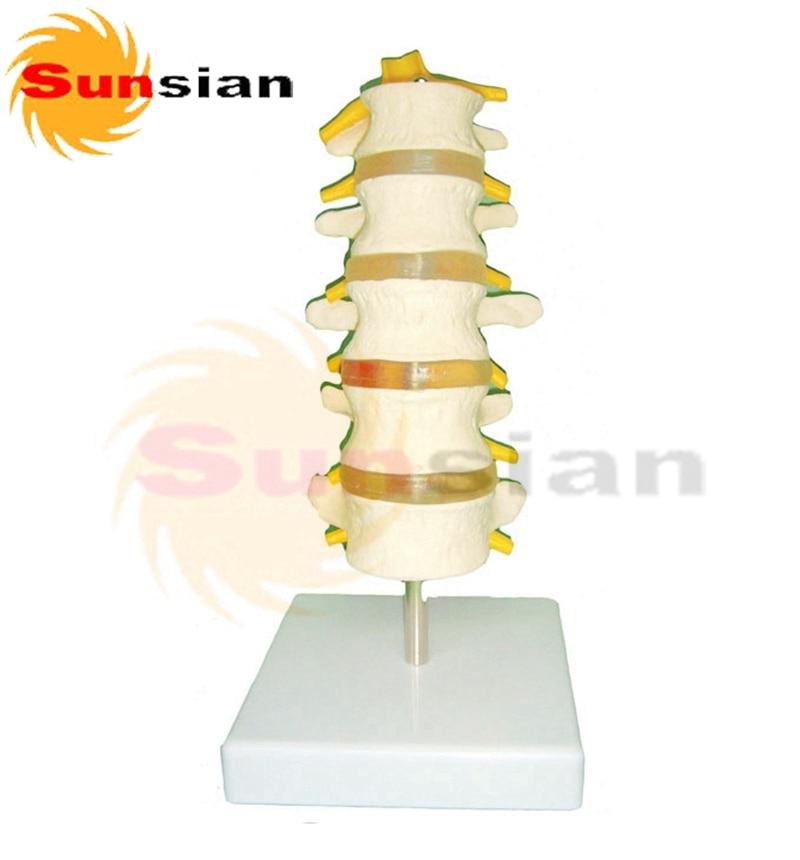 Lumbar vertebrae with Prolapsed Intervertebral Disc ,human skeleton anatomical  model normal lumbar set lumbar vertebrae 2pcs 3pcs 4pcs bix a1010 g162