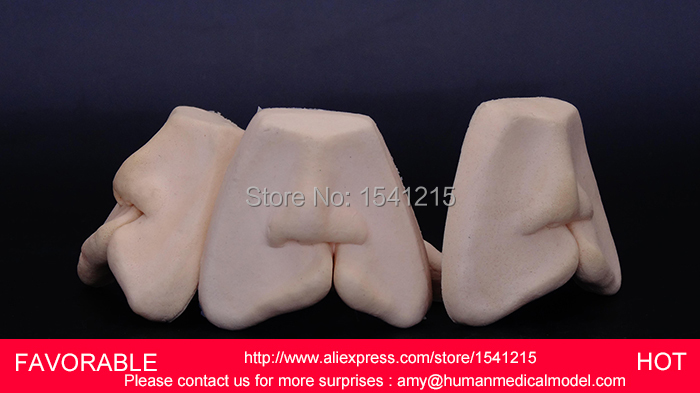 DENTAL TEACHING MODEL,ADULT DENTAL TEETH MODEL,ANATOMIACL TOOTH MODELS,MOUTH ORAL CARE ,CLEFT LIP STITCHED MODEL-GASEN-DEN0020 growth in cleft lip and palate subjects
