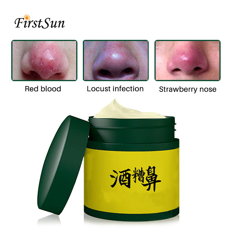 Rosacea Cream Red Nose Herbal Anti Nose Mites Remove Acne Blackhead Remover Acne Treatment Shrink Pores Face Bleaching Ointment