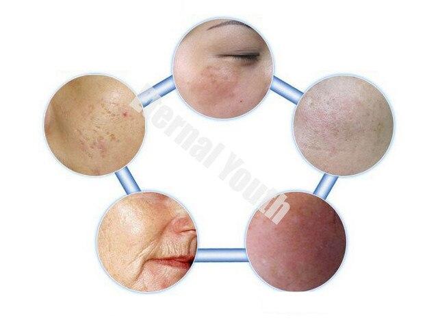 5 компл. DIY сыворотка прыщи шрамы морщины лечение эфр лиофилизованный эпидермального фактора роста rhEGF порошок по уходу за кожей