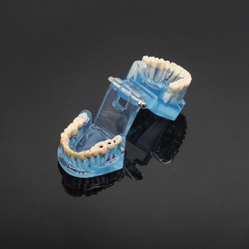 Dentisterie étude dent modèle adulte pathologique enseignement dents modèle Caries