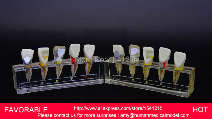 TOOTH DISEASE PATHOLOGICAL ANATOMICAL MODEL OF TEETH CARIES GINGIVAL MEDICAL ,ENDODONTICS DENTAL MODEL DEMO 1-GASEN-DEN047 soarday 1 piece 2 times dental pathological model display deep caries shallow caries teaching model