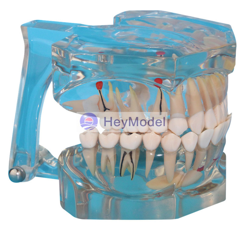 HeyModel Adult Teeth Model Transparent tooth pathology 2.5 times magnified heymodel human teeth with pathology