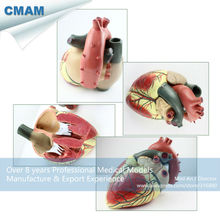CMAM HEART09 Oversized Human Heart Anatomical Model 3 Parts Anatomy Models Heart Models