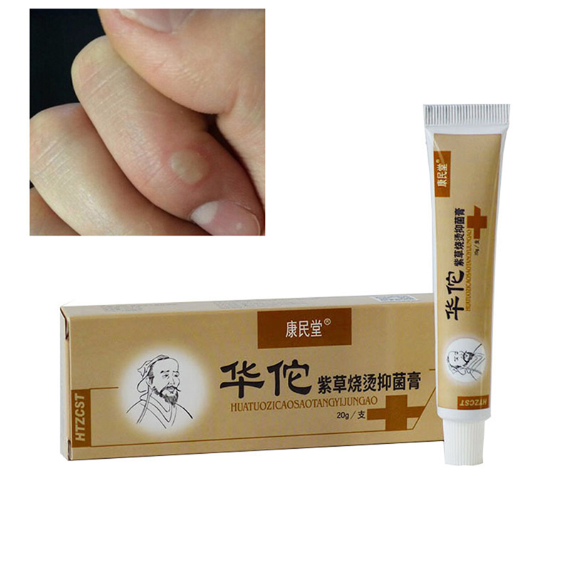 Anti Infection Cream Antibacterial Burn Wound Care Ointment Burns