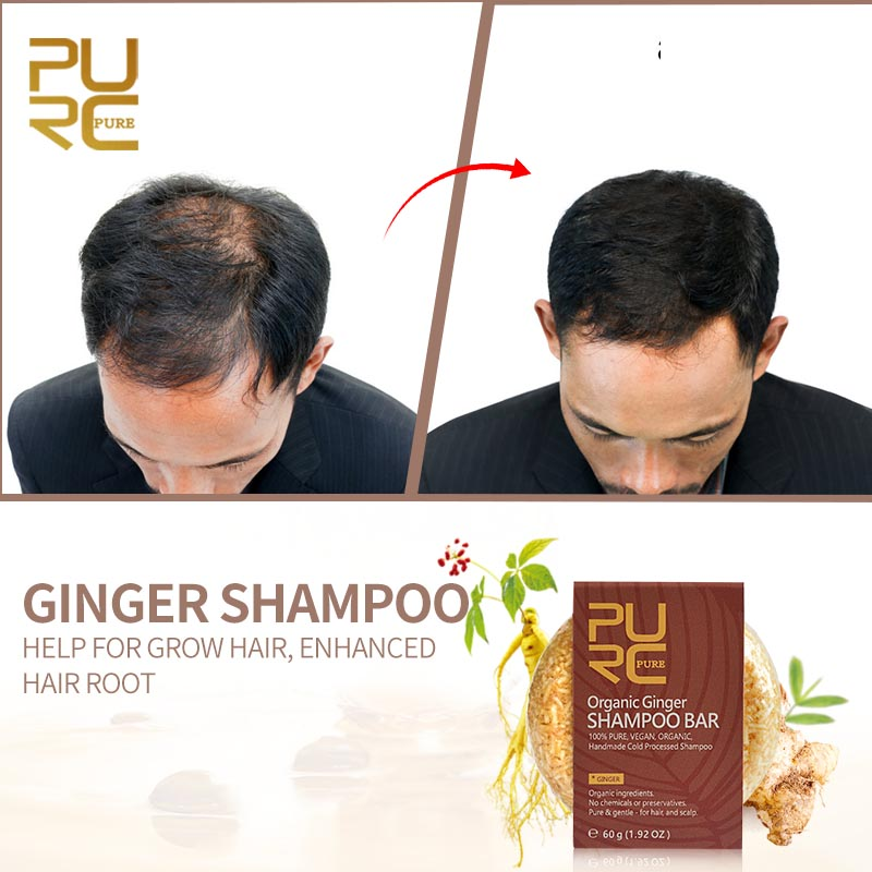 PURC Shampoo-Bar Preservatives Ginger Hair-Loss Natural Handmade Cold-Processed For No-Chemicals