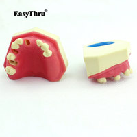 Dental Model Oral Implantology Maxillary Teeth Bone Maxillary Sinus Dentition Implant Implant Dentist Anatomical Model