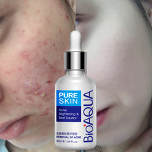 BIOAQUA Brand 30ml Acne Treatment Essence Scar Removal Spots Facial Skin Care Whitening Moisturizing Face
