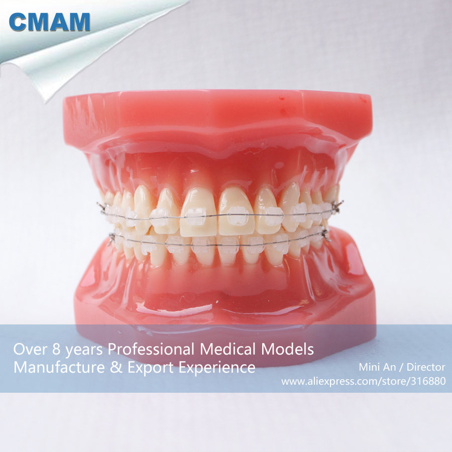 CMAM-DH206-3 Ortho Ceramic Bracket Tooth Jaw Model, ORT series Dental Model for Patient Communication cmam dental16 child dental education 3 6 age graghically developing model