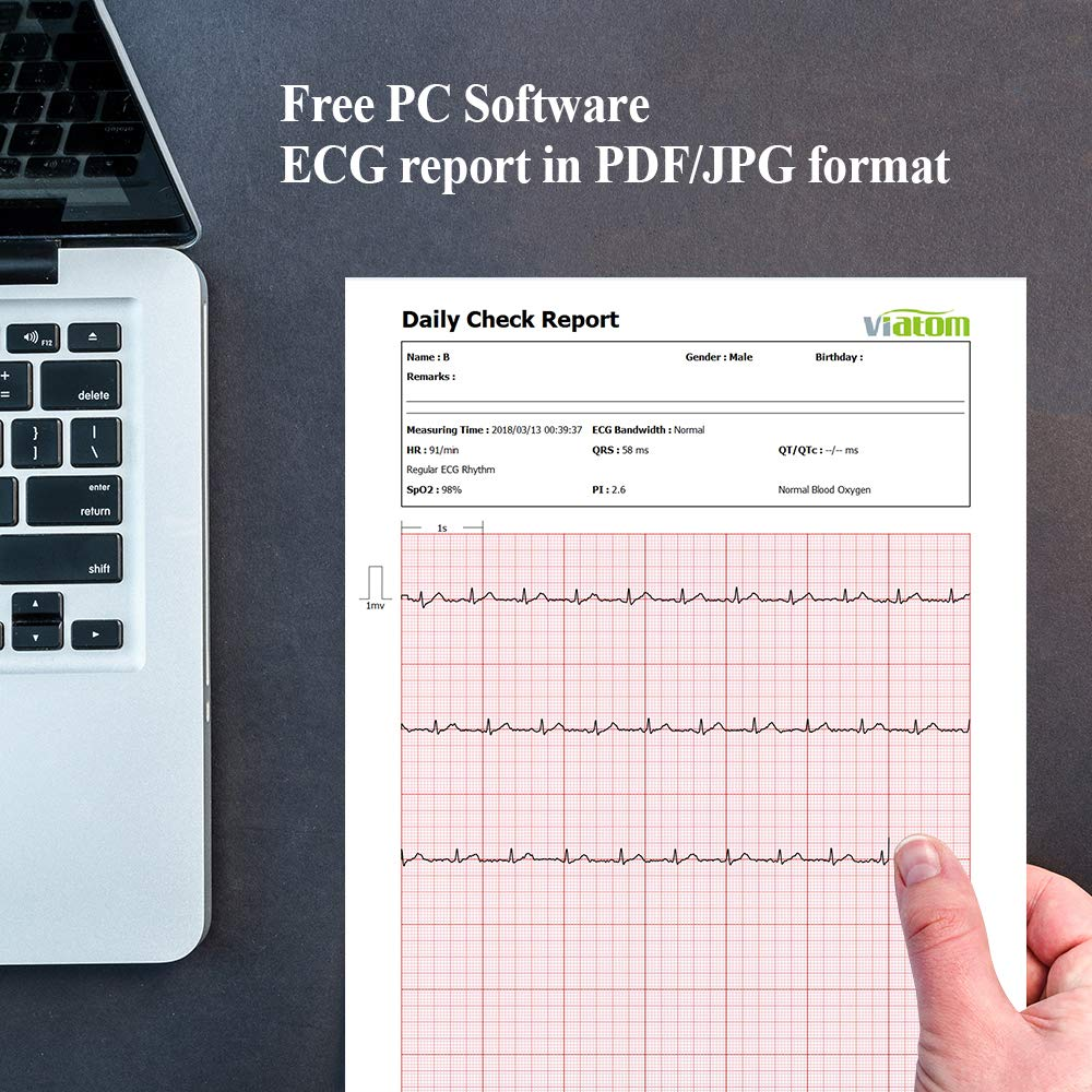 Checkme Pro Sleep Apnea Portable ECG Monitor, Home Use Vital Signs Monitor - FDA Cleared - EKG Holter Monitoring, Heart Rate