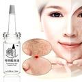 10 ml * 2 pcs ácido Tranexâmico líquido original de Clareamento e anti rugas hidratante essência sardas melanina, anti-acne Índia