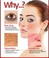 Remova a acne creme + dissipar acne equilíbrio graxa fluido elite poros contracionista 3 dias remover acne terno