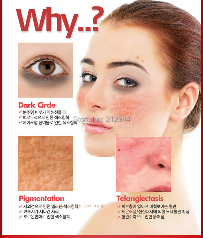 Remove the acne cream + dispel acne elite fluid balance grease contractive pore 3 days remove acne suit