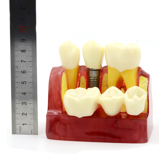 2016 NEW ARRIVAL MACRO IMPLANT MODEL CROWN BRIDGE DEMOSTRATATION TEETH TOOH TYPODONT DENTOFORM
