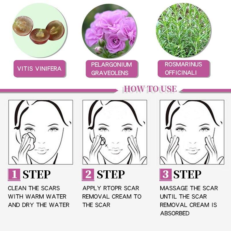 RtopR Acne Scar Stretch Marks Remover Cream Skin Repair Face Cream Acne Spots Acne Treatment Blackhead Whitening Cream Skin Care 4