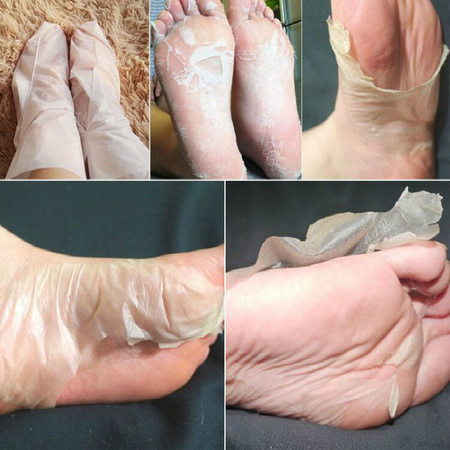 BAIMISS 1 Bag=2 PCS Peeling Exfoliating Foot Mask Feet ...