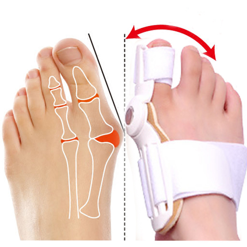 1PCS Hallux Valgus Korreksjon Pedicure Device Bunion Toe Separators Fødselspleie Corrector Big Bone Thumb Orthotics Foot Care Tool