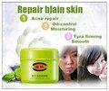 Chino a base de hierbas cuidado de la cara crema de reparación tratamiento del acné eliminar manchas de la cicatriz estrías reparación crema esencia cuidado de la piel