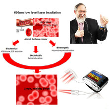 Cold Laser Therapy High Blood Pressure Therapy Clean Blood Trash Prevent cardiovascular and cerebrovascular diseases Laser Watch цена 2017