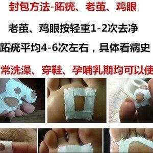 Image 5 - Mechones de piel Natural chinos para eliminación de verrugas, ungüento para las verrugas