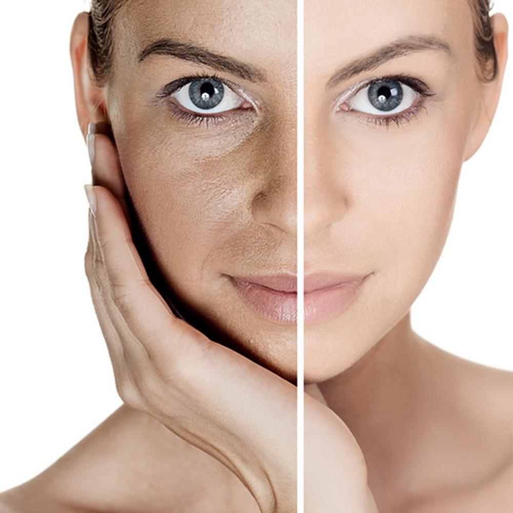 KONGDY Neue Ankunft 30 Patches Körper Bleaching Patch Glutathion Haut Erhellen Haut Anti Aging Reduzieren Dark-in Massage & Entspannung aus Haar & Kosmetik bei  Gruppe 1
